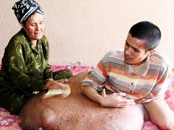 Нгуен Дуй Хаи с матерью. Фото с сайта nydailynews.com